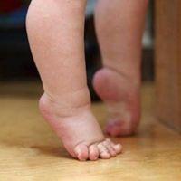 ребенок поджимает пальчики на ногах