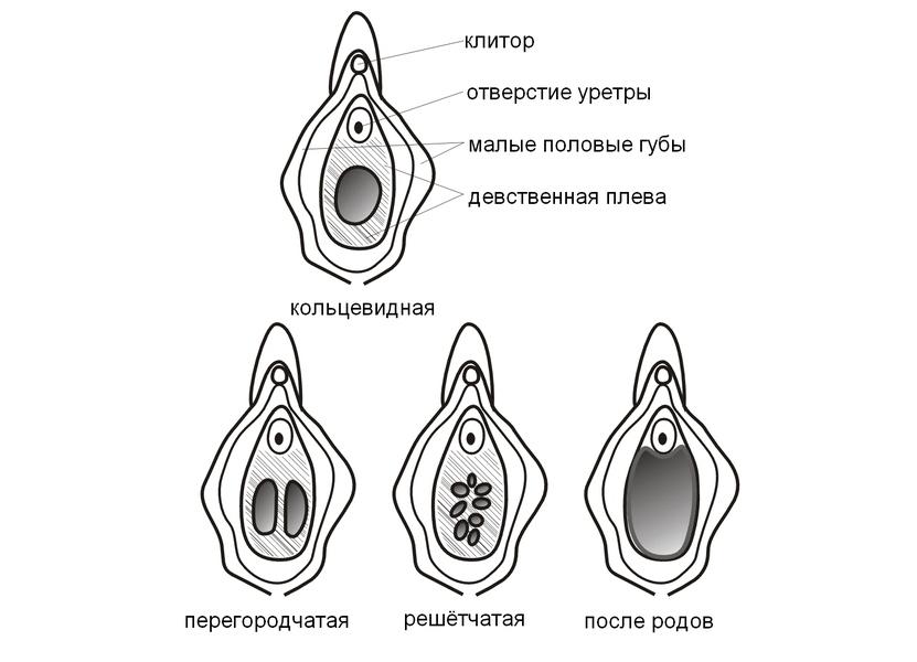 atreziya-naruzhnogo-otverstiya-vlagalisha