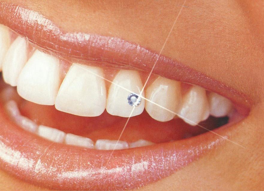 Скайс украшение для зубов