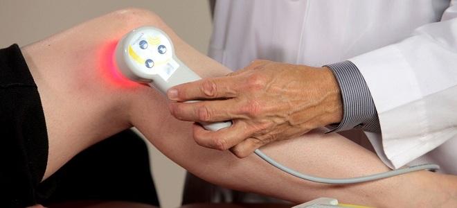 домашние аппараты лазера для сустава
