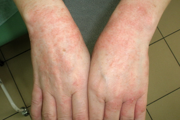 аллергия с волдырями фото