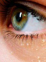 Жировики на веках глаз как избавиться