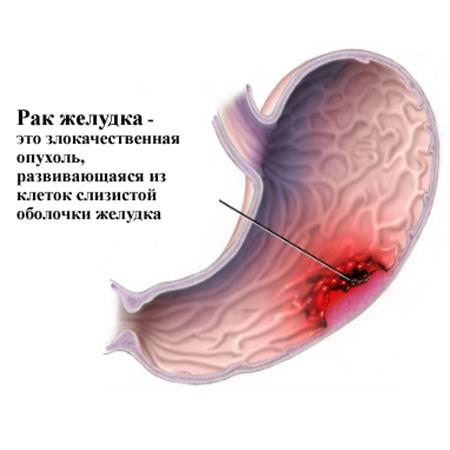 1 симптомы рака Первые симптомы рака прямой кишки