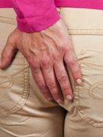 Препараты для лечения геморроя внешнего