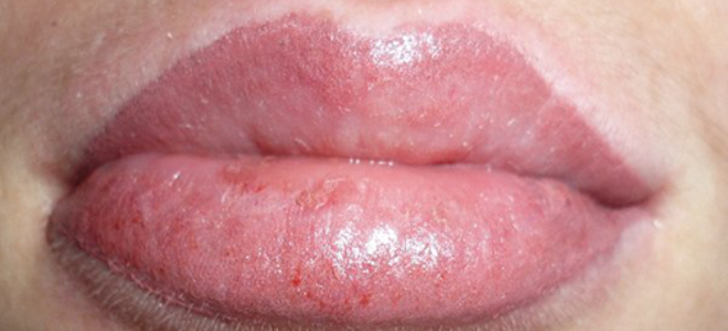 отек после перманентного макияжа губ