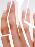 Трескается кожа на руках – ищем причины и устраняем проблему