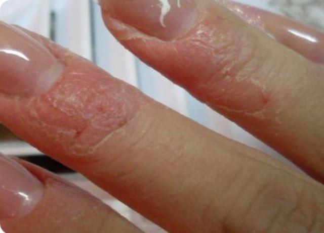 аллергия на первое весеннее солнце