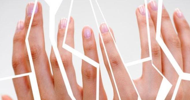 Трескается кожа на пальцах причины лечение фото