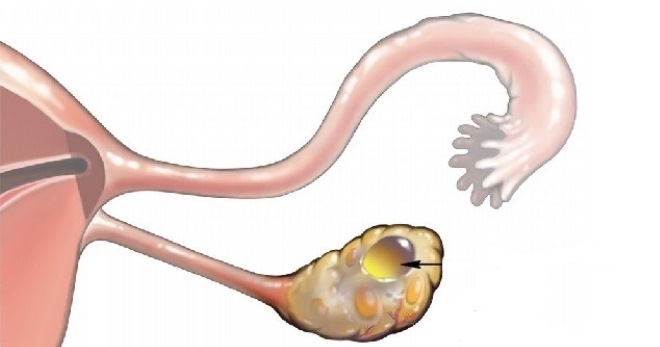 Киста яичника лечение кисты хирургическое и
