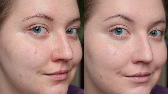 газожидкостный пилинг фото до и после2