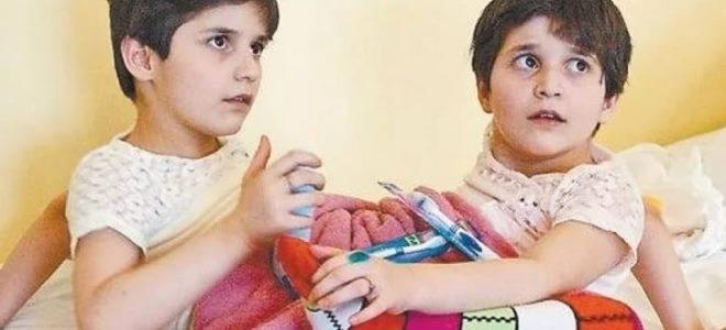 гита и зита сиамские близнецы фото