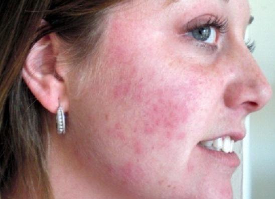 Симптомы аллергической сыпи у детей фото