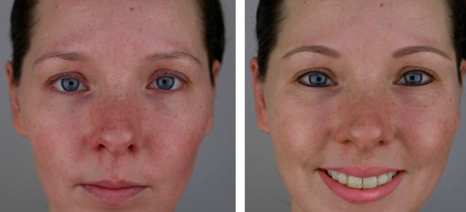 перманентный макияж век фото до и после 3