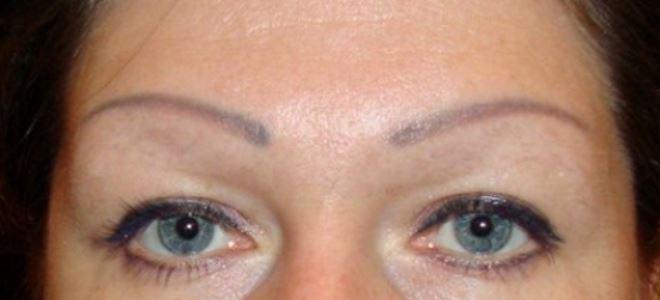 удаление татуажа глаз ремувером1