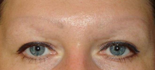 удаление татуажа глаз ремувером2