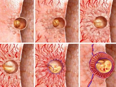 Как прикрепляется эмбрион фото