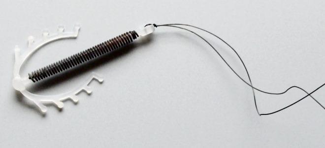 Внутриматочная противозачаточная спираль от беременности - виды, установка и удаление