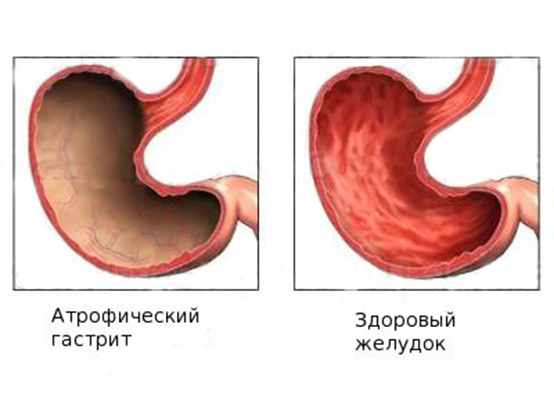Атрофия слизистой желудка