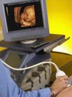 Допплерометрия при беременности - расшифровка