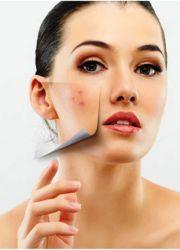 Угри на щеках причины и лечение