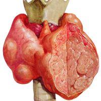 узловой зоб щитовидной железы симптомы и лечение