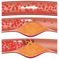 Признаки атеросклероза аорты сердца