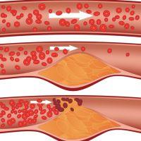 повышенный холестерин симптомы лечение причины возникновения