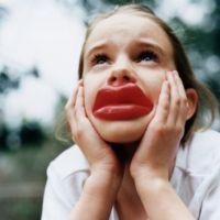 Опухла губа что делать
