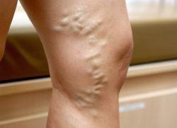 Изменение кожи ног при варикозе