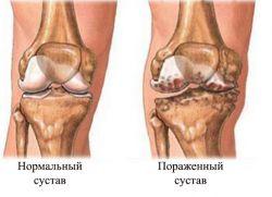 Что такое гонартроз 2 степени коленного сустава