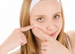 Гнойные прыщи на лице причины и лечение