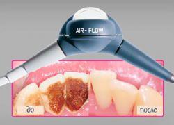 Аїр флоу чистка зубів