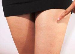 Варикоз и гормональные контрацептивы