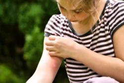 чем обработать место укуса комара у ребенка