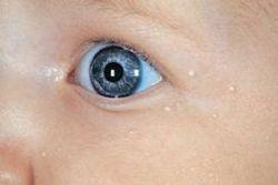 Белые точки у новорожденного на лице