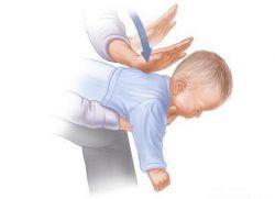 Что делать если месячный ребенок подавился