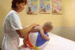 гипотонус у новорожденных