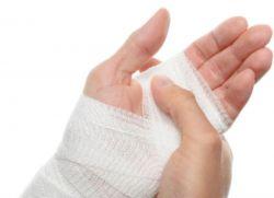 Химический ожог кожи – лечение в домашних условиях