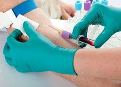 кровь на гормоны в гинекологии