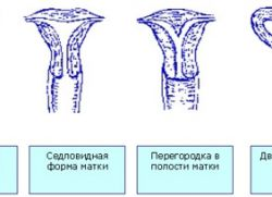 перегородка в полости матки
