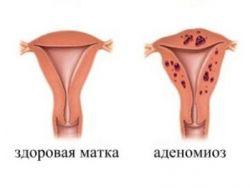 Аденомиоз - лечение