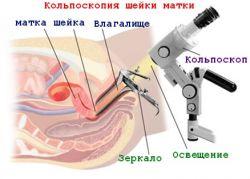 Кольпоскопия при беременности зачем назначают
