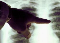 Химиотерапия при метастазах в легких