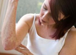 psoriaz-lechenie-domashnie-metodi