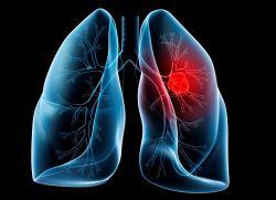 Рак легких лечение народными средствами