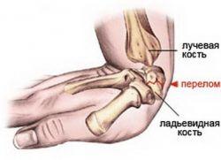 Перелом лучевой кости руки