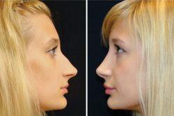 удаление горбинки на носу