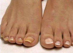 Ногти на ногах утолщаются что это