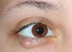 Причины появления ячменя на глазу