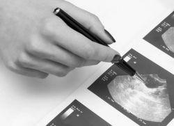 беременность без эмбриона фото